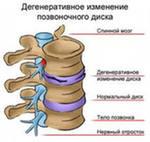 здоровая спина упражнения, здоровая спина за 10 минут.