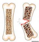 как лечить остеопороз.