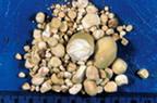 камни в мочевом пузыре.
