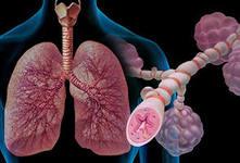 как лечить бронхиальную  астму.